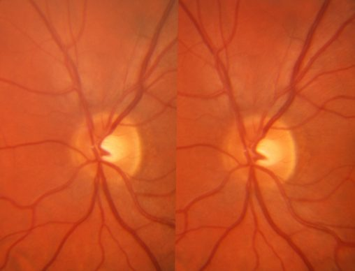 3D image of my right eye optic nerve